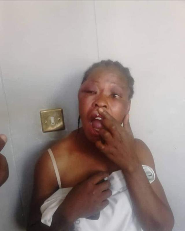 Brutal Beating of MDC Official
